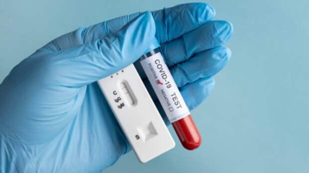 Число зараженных коронавирусом вРостовской области превысило 93тыс