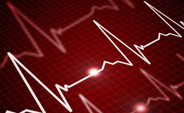 Каротидная проба В горле, неподалеку от блуждающего нерва, находится каротидная артерия. Массируйте эту область кончиками пальцев, без нажима. Легкая стимуляция заставит нерв снизить пульс.