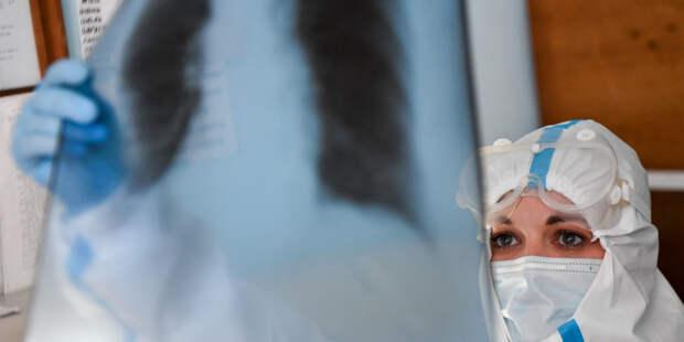 Ученые обучили нейросеть выявлять коронавирус по рентгеновским снимкам