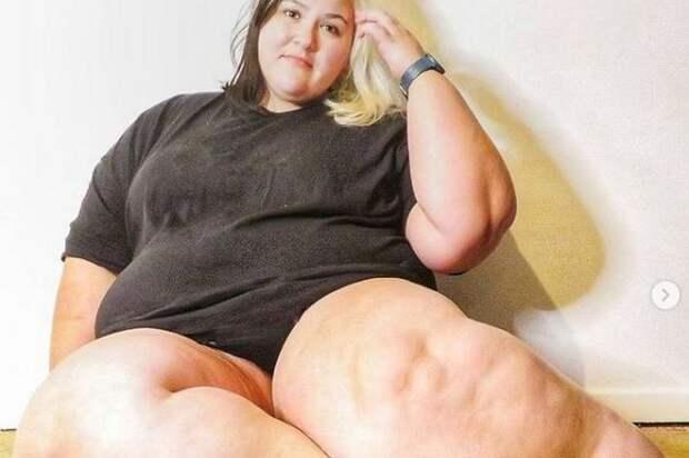 Британка изнуряла себя диетами, чтобы ее ноги похудели, но это была болезнь