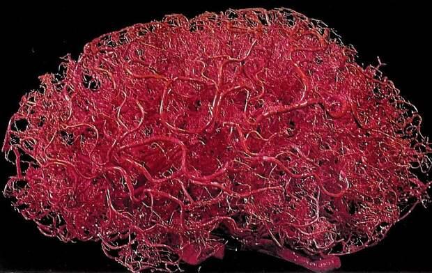 Ученые выяснили, что коронавирус повреждает сосуды мозга, а не нервные клетки