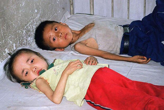 Дети — жертвы голода в КНДР, июнь 1997 года Фото: Reuters