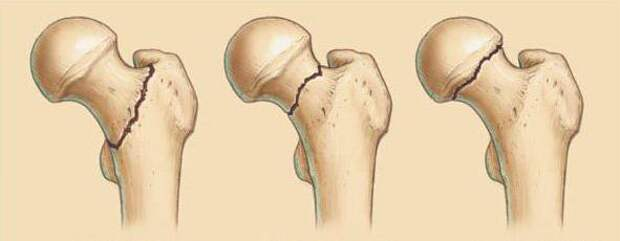 Сколько живут пациенты в пожилом возрасте с переломом шейки бедра
