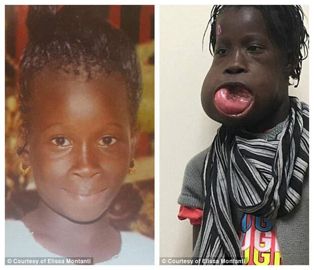 Впервые девочка пожаловалась на боль, когда ей было девять. Мама обращалась к врачам в Гамбии и Сенегале, но безрезультатно врачи, операция, опухоль