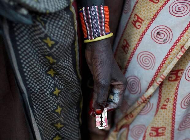 Варварская традиция обрезания девочек