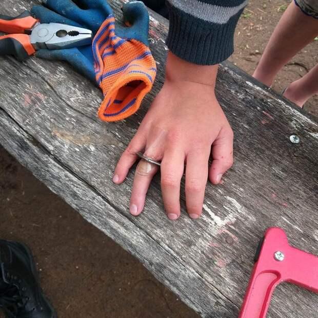 Спасатели в Воткинске вызволили застрявший палец ребенка