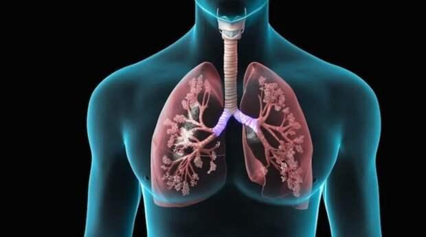 Появление легочного свиста может быть связано с хроническими заболеваниями