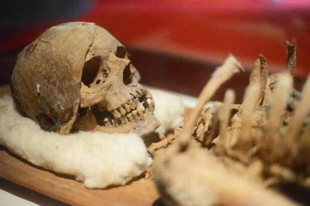 Древнейшие свидетельства об онкологических болезнях