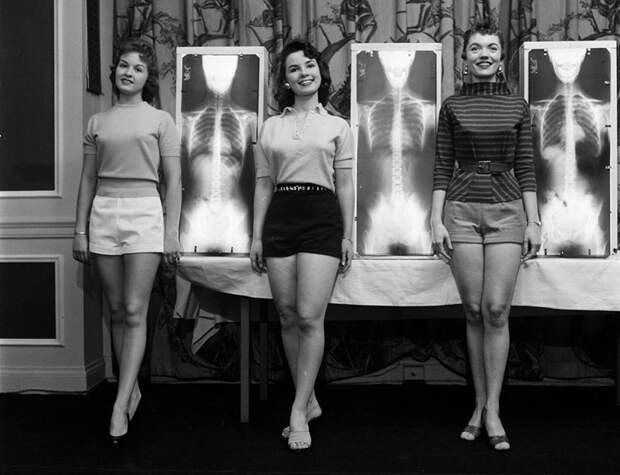Рентген, отвес и весы: как выбирали «Мисс правильную осанку» в 50‑е