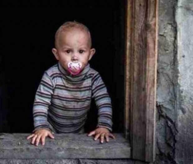 Больше половины раненых в мае среди гражданских на Донбассе – дети