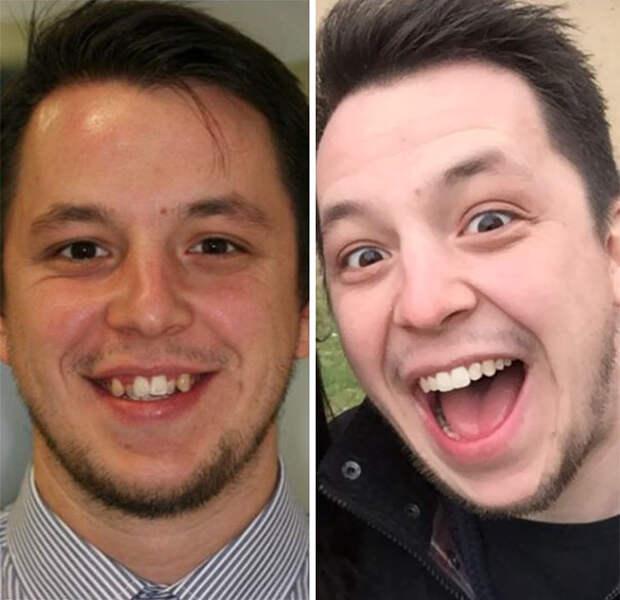 Вот как кардинально брекеты меняют улыбку и жизнь