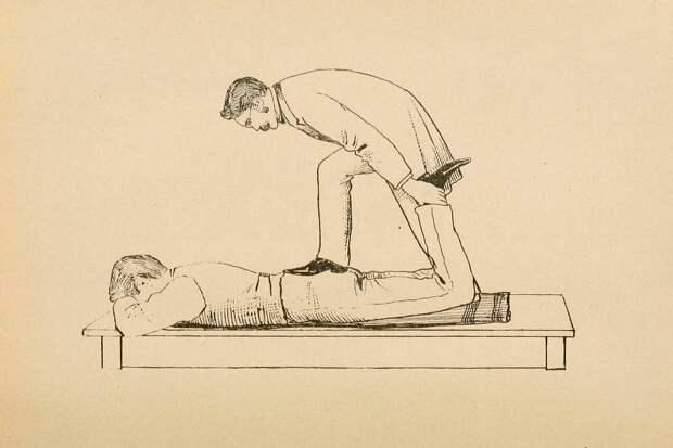 Лечение импотенции по Стиллу в 1898 году. Источник: Internet Archive