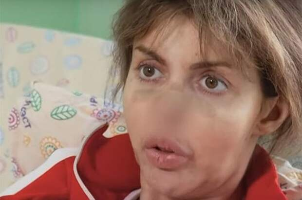 """""""Слезы душат"""" Алиса Аршавина  рассказала, как ей далеко до выздоровления и возвращения красоты"""