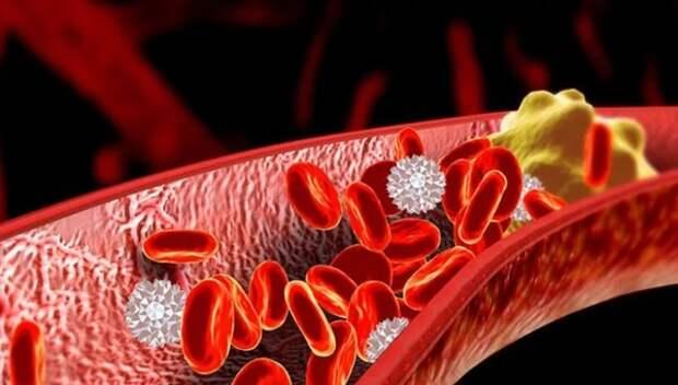 Российские ученые выяснили, как быстро и безопасно уничтожить тромбы в организме