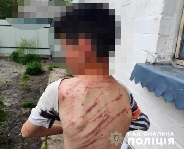 В Волынской области мужчина избил малолетнего пасынка