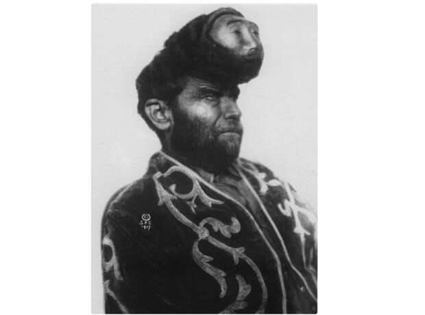 6. Паскуаль Пиньон со второй головой интересное, история, странное, фотография