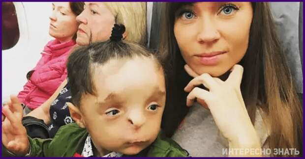 Как сложилась жизнь Рустама «без лица» после того, как он попал в семью