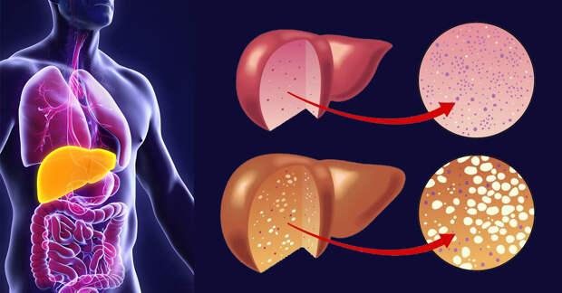 Медики назвали два физических симптома опасного заболевания печени