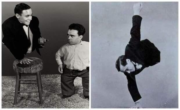 7. Джонни Экк — человек без ног интересное, история, странное, фотография