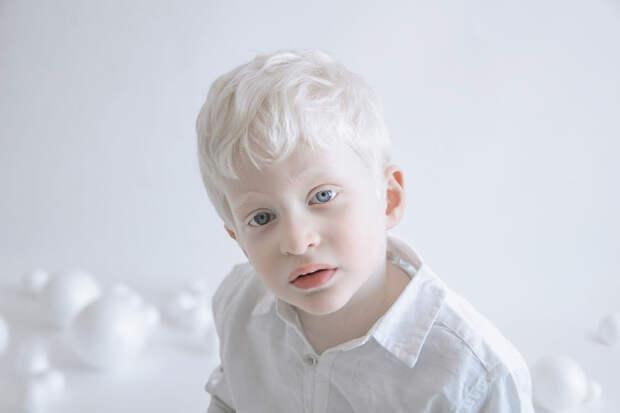 Гипнотическая красота людей с альбинизмом в новой серии фотографий Юлии Тайц