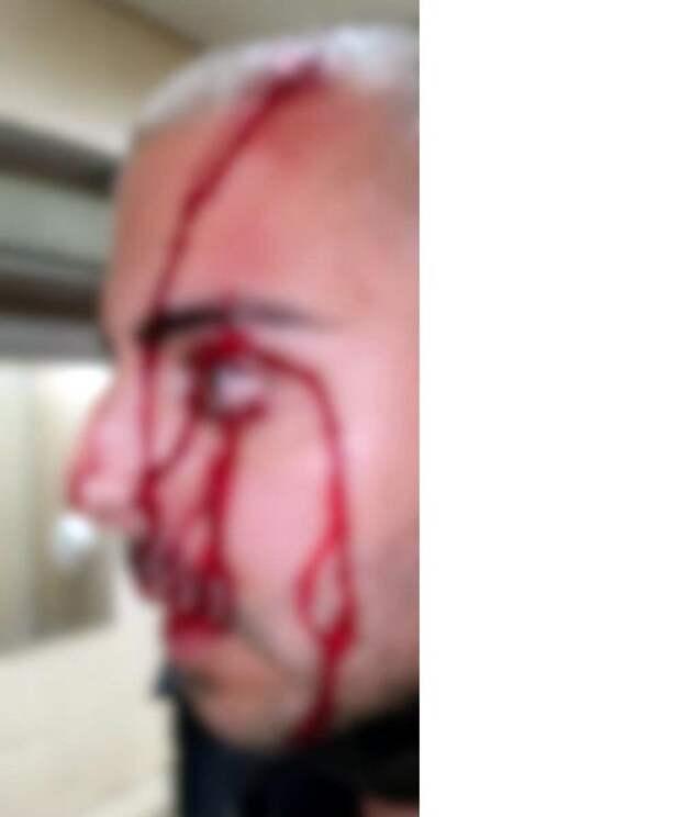 Иудейские войны: полицейских отрезали от своих и сильно избили, беглец уподобился Керенскому