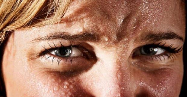 Холодный пот и повышенная потливость: причины, риски и устранение