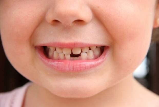 Прорезывание постоянных зубов. Сроки и проблемы