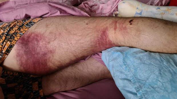 Фото увечий, которые получил экс-муж супруги Илюмжинова при нападении