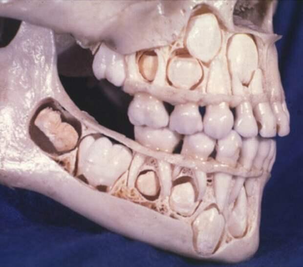 13. Череп ребенка до момента смены молочных зубов на постоянные