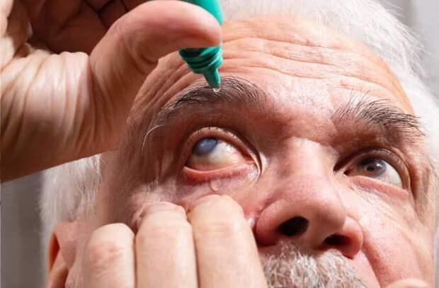 катаракта у пожилого человека