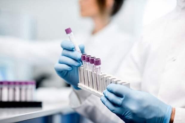 На Кубани выявили 88 человек с коронавирусом