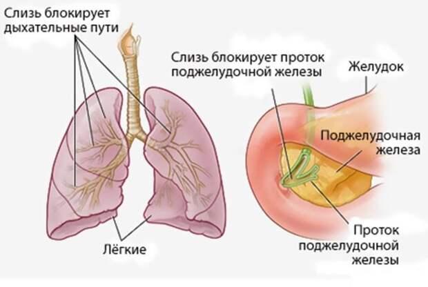 В результате начинают страдать органы дыхания, пищеварения и поджелудочной железы ynews, вдох, видео, девушка, здоровые, легкие, медицина, пересадка, пересадка легких, реакция, трансплантация