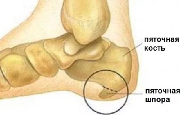 """Пяточная шпора - болючий """"шип"""" в ноге. 13 быстрых рецептов лечения, ходить будете свободно и легко!"""