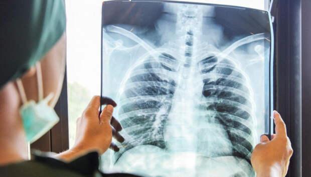 Заболеваемость внебольничной пневмонией опять возросла в Карелии