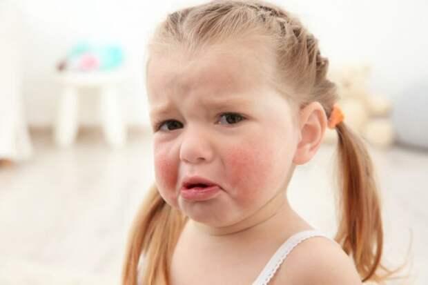 Пятая болезнь у детей. Что это такое и чего опасаться?