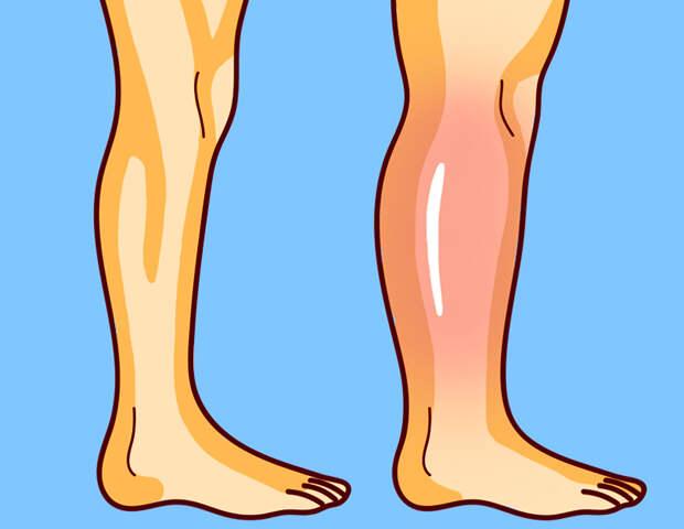 Упражнения от остеопата для снятия отеков ног