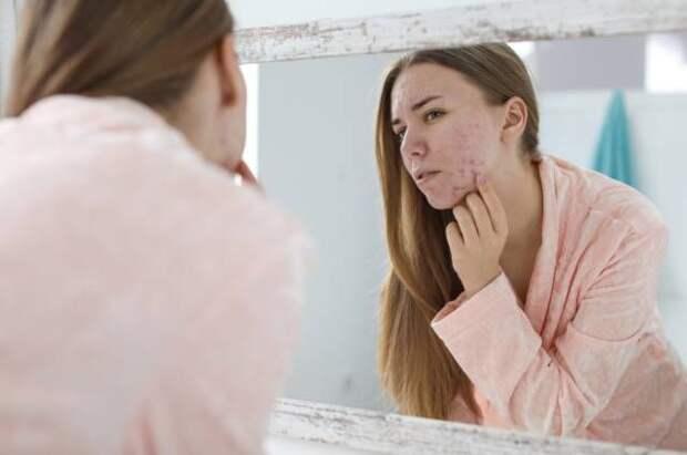 На какие диагнозы указывают проблемы с кожей
