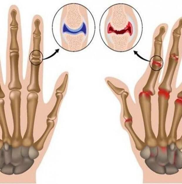 Лечим ревматоидный артрит народными средствами