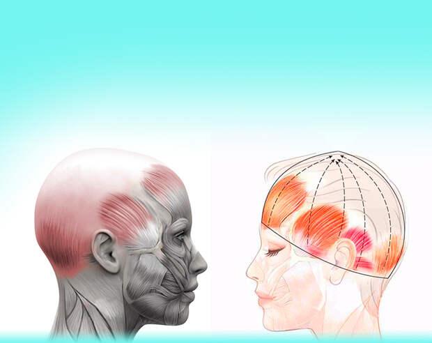Сухожильный шлем: спасаем лицо от морщин