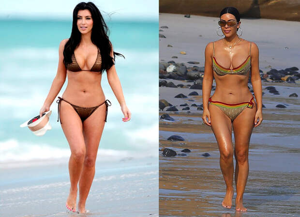 4 пластических операции, которые делала Ким Кардашьян