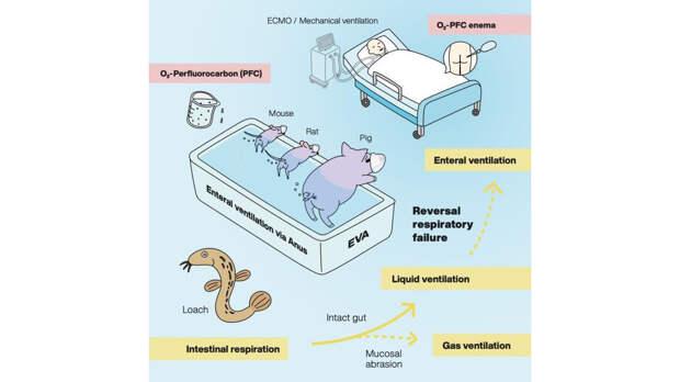 Ученые предложили поддерживать дыхание вентиляцией прямой кишки