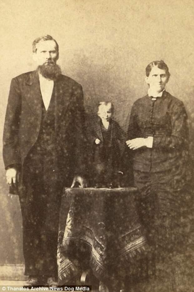 Дадли Фостер весил всего 2 кг в возрасте 5 лет деформация, люди