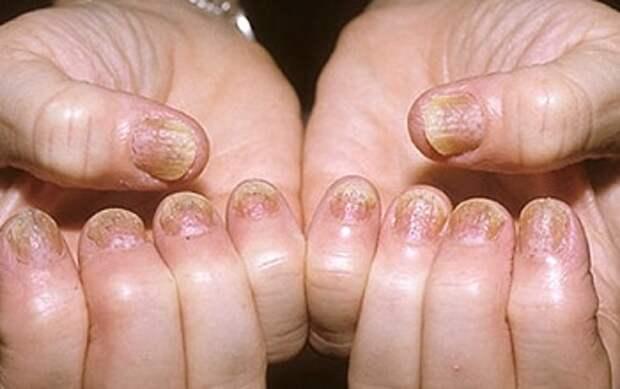 Псориаз пальцев