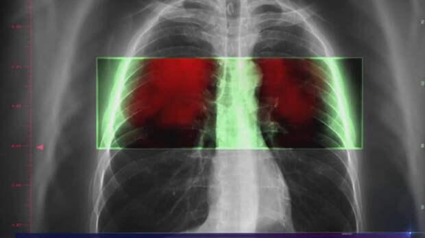 Рак легких убивает иммунотерапия! Вот как это работает