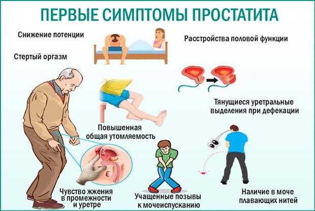 Простатит у мужчин. Симптомы и признаки, лечение простатита в домашних условиях