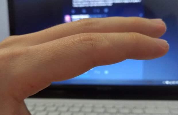 Люди вдруг осознали, что увсех них есть шрам науказательном пальце