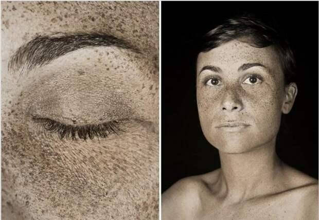 Как солнце воздействует на кожу раскрыли УФ-портреты