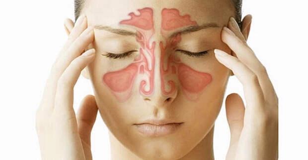 Синусная инфекция: признаки, симптомы, причины, риски и 7 природных средств для быстрого устранения