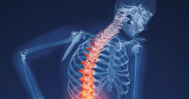 Остеопороз: симптомы, причины и лучшие способы укрепления костей (видео)
