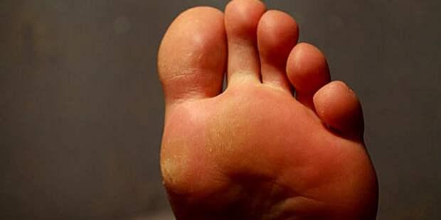 Отчего болят стопы ног. Как это влияет на здоровье
